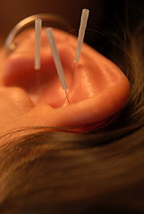 Palm Harbor Auricular Acupuncture / Palm Harbor Detoxification Acupuncturist