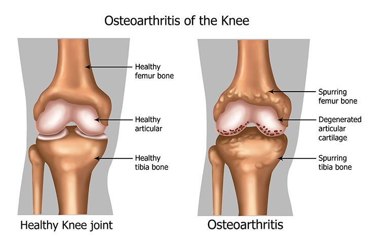 Osteoarthritis Pain Relief In Palm Harbor, FL - Palm Harbor  Acupuncture Clinic