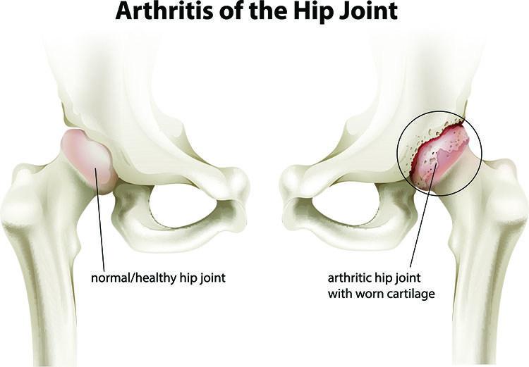 Arthritis Pain Relief In Palm Harbor, FL - Palm Harbor  Acupuncture Clinic