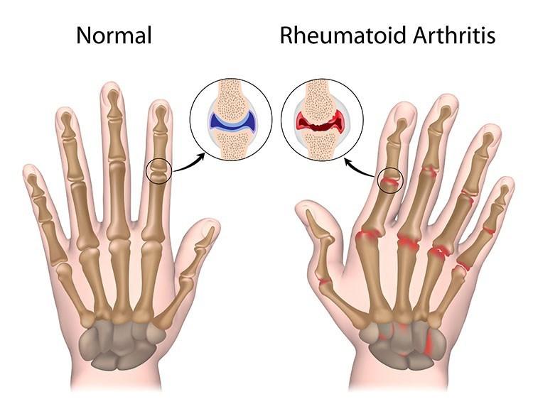 Rheumatoid Arthritis Pain Relief In Palm Harbor, FL - Palm Harbor  Acupuncture Clinic
