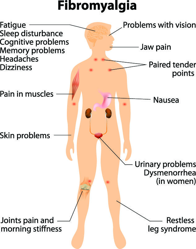 Fibromyalgia Natural Treatment With Chinese Medicine - Palm Harbor  Acupuncture Clinic